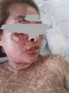 Graphic Photos: Woman Dies After Consuming Herbal Drugs She Bought on Facebook to Lighten Her Skin